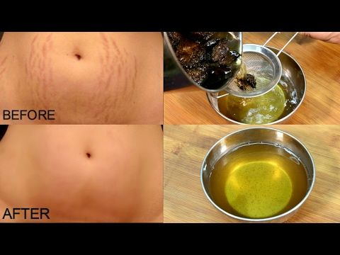 Get Rid Of Stretch Marks In 30 Days/ Stretch Marks Removal *Simple Beauty Secrets* - YouTube