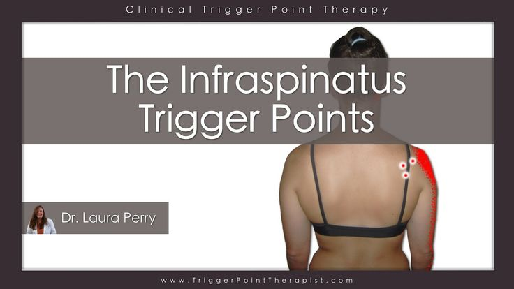 The Infraspinatus Trigger Points