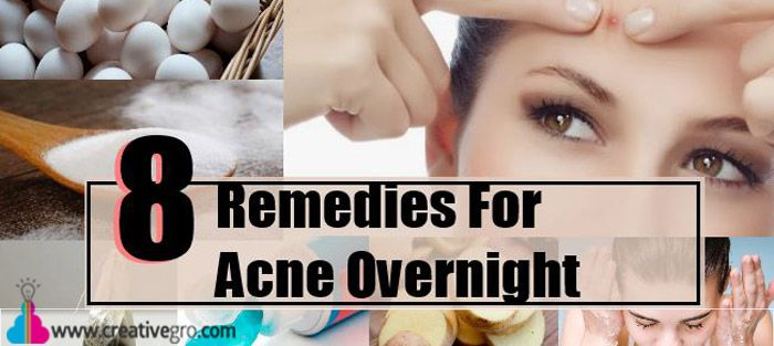 Not all techniques will work out the best for each skin type and cause of acne. In addition, why to go for artificial products when you have so many useful ingredients in your kitchen?Discussed her are 8 best home remedies to cure acne that can do wonders.