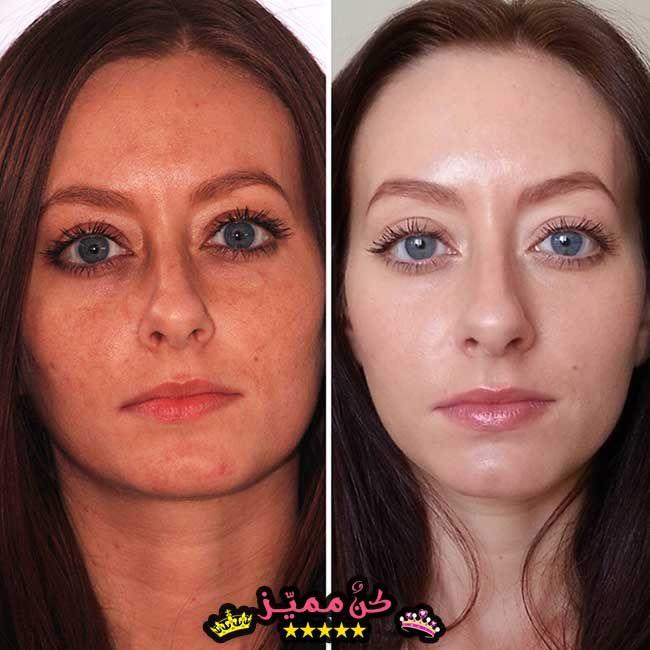 الليزر الكربوني للوجه قبل و بعد مميزاته و اضراره و دواعي استخدامه Carbon Laser For The Face Before And After Its Adv Laser Therapy Laser Therapy