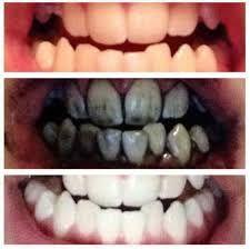 Student's Amazing Teeth Whitening Trick!