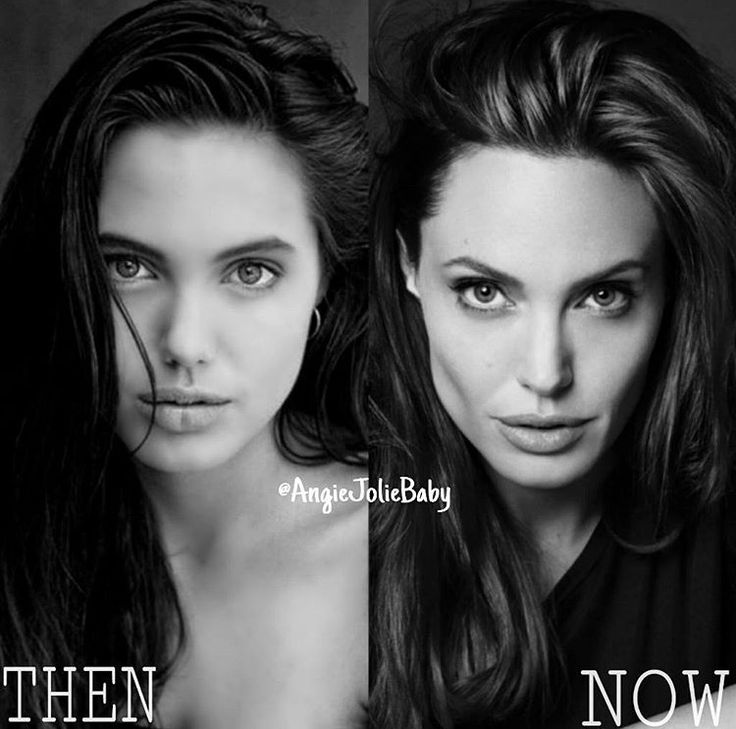 She Is So Much Skinny And Sick Looking Now