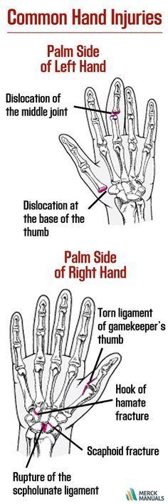 Scapholunate Ligament Injury Alaska Hand Manual Guide
