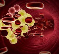 Souvisí výše cholesterolu s počasí? Co na to říkají experti: