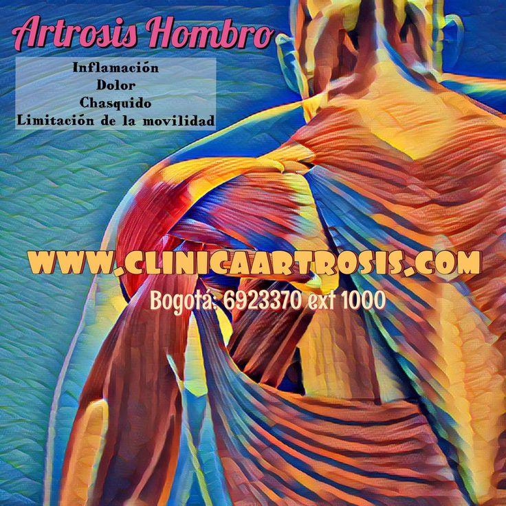 Tratamientos efectivos para todas las edades en artrosis y dolor articular del hombro. Clínica de Artrosis y Osteoporosis www.clinicaartrosis.com PBX: +571-6836020, Teléfono Movil: +57-3142448344 en Bogotá - Colombia.