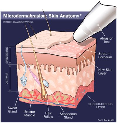 Microdermabrasion removing several layers of the skin, allowing new skin cells to appear. Produces collagen and elastin.