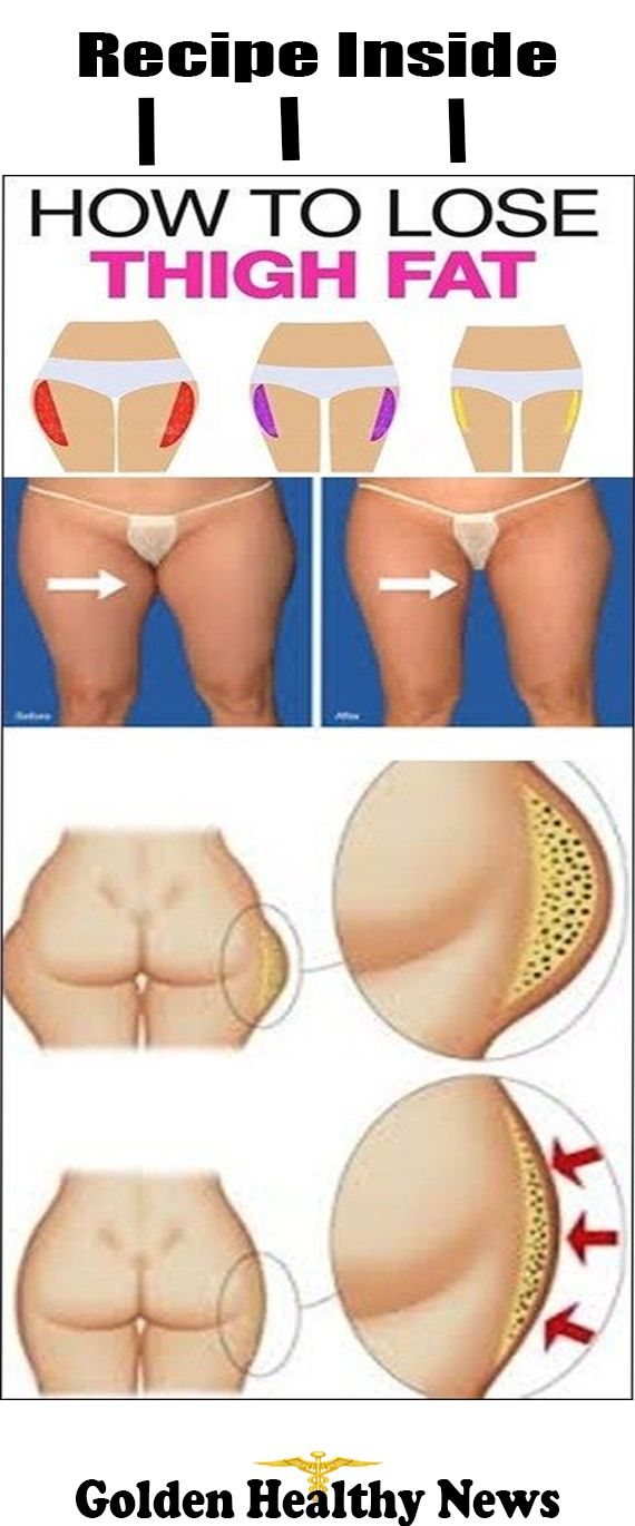 How to Lose Inner and Outer Thigh Fat Instantly? Try this