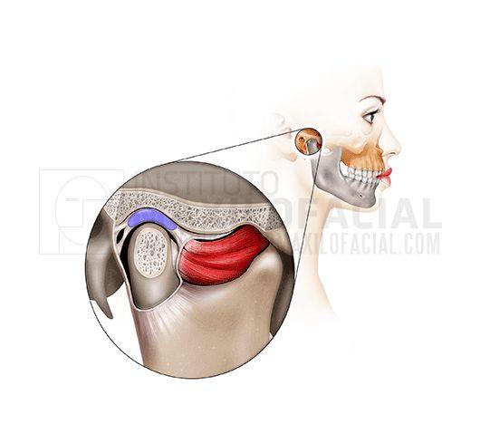 La articulación temporomandibular o ATM es la articulación formada por la parte superior de la mandíbula y el hueso temporal del cráneo.