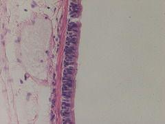 Pseudostratified Ciliated Columnar Epithelium Apologia anatomy slides
