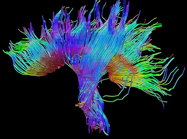 These Science Photos Are So Beautiful They're Basically Art Nerve Fibers Coursing Through the Human Brain