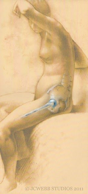 I really like this art drawing of a women with hip replacement. I can totally relate.
