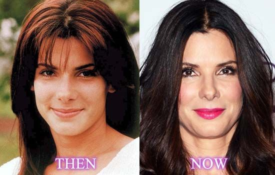 Sandra Bullock Nose Job Before and After Looks Perfect