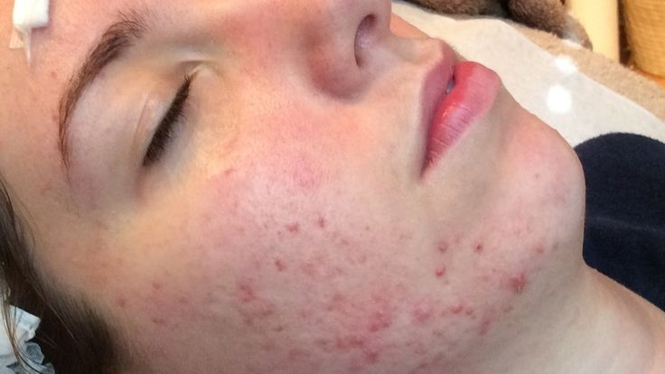 Acne Dying For Clear Skin - Full Acne Documentary