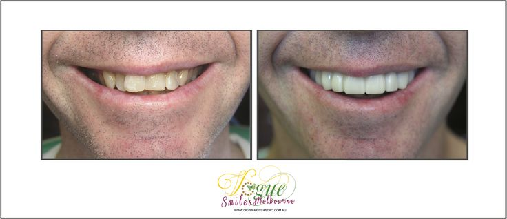 Tired of hiding your smile from others? Wish you could finally do something about your discolored, cracked, or missing teeth? But can't afford expensive works? Ask about our SNAP ON SMILE. Vogue Smiles Melbourne can help you improve your smiles.  http://drzenaidycastro.com.au/, http://melbournecosmeticdentistry.com.au/, http://dentist-in-melbourne.com.au/, https://www.youtube.com/channel/UC0dLOqSdLKJqrrzuP3axNxA, https://heartandsoulwhisperer.com.au/, #Affordable Veneers