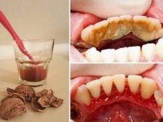 Jak se jednoduše zbavíte zubního kamene? Známe starý babský recept