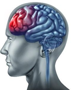 Common brain injury issues