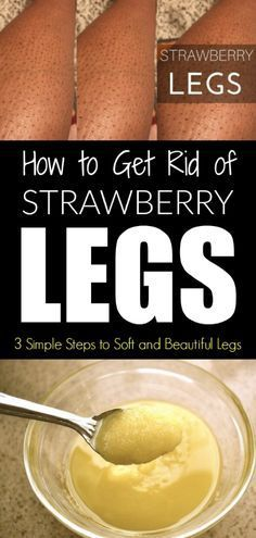 How to Get Rid of Strawberry Legs – 3 Simple Steps to Soft and Beautiful Legs