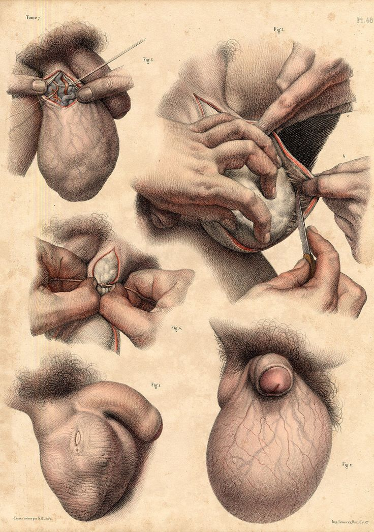 249 best Urology & Nephrology Oldies images on Pinterest | Medicine ...
