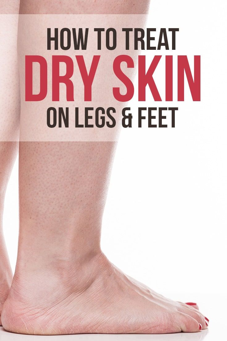 What Causes How To Treat Dry Skin On Legs Skin Care Tips Treating Dry Skin Extremely Dry Skin Dry Skin Routine