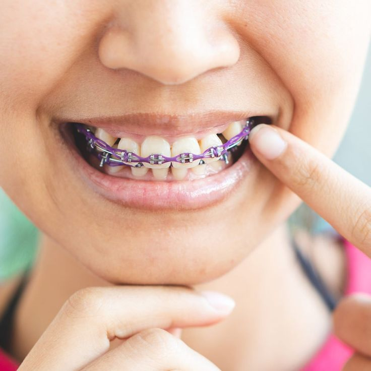 9 foods you can eat with braces braces food eat soft foods