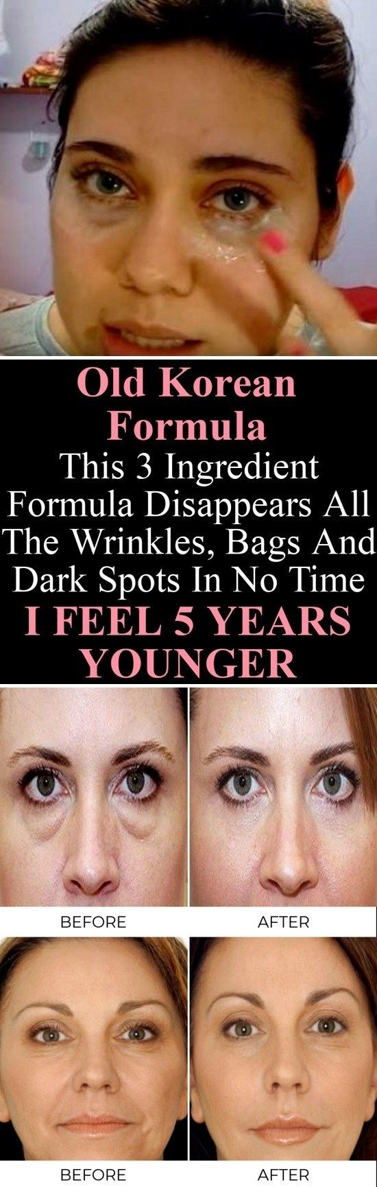 Old Korean Formula This 3 Ingredient Formula Disappears All The Wrinkles, Bags And Dark Spots In No Time I FEEL 5 YEARS YOUNGER