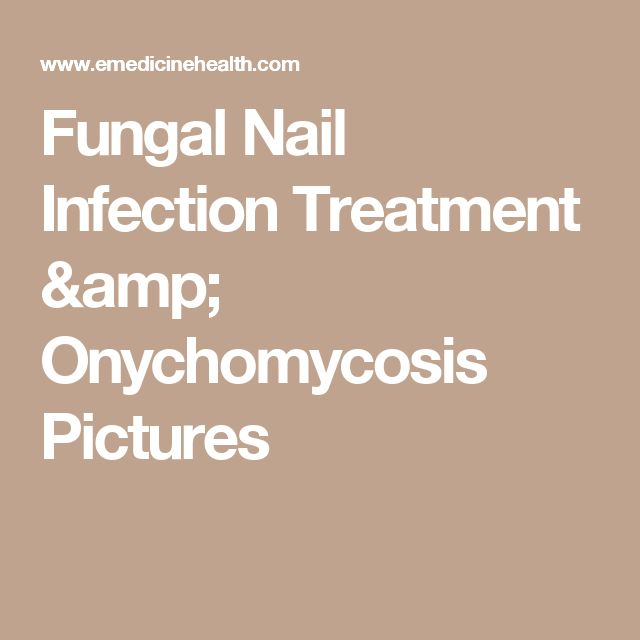 Fungal Nail Infection Treatment & Onychomycosis Pictures