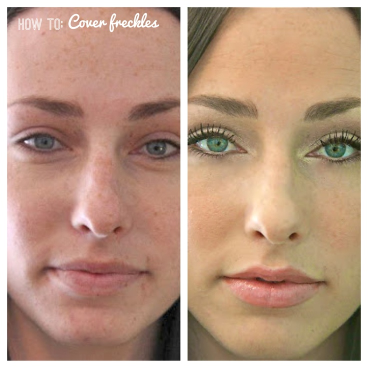 Cover-up for freckles | Kissable Complexions