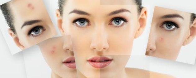 La maschera alla lavanda per pelle impura è un trattamento, da fare dopo lo scrub,ricostituente e purificante per la pelle impura o mista.