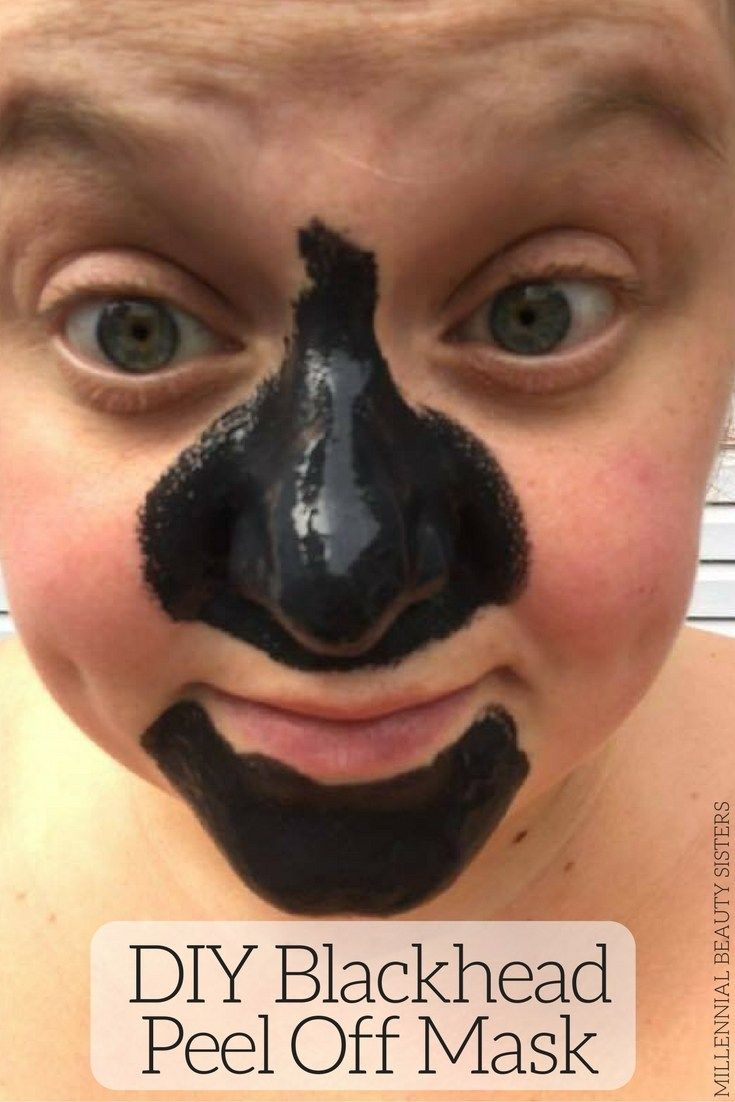 blackhead killer peel off mask review