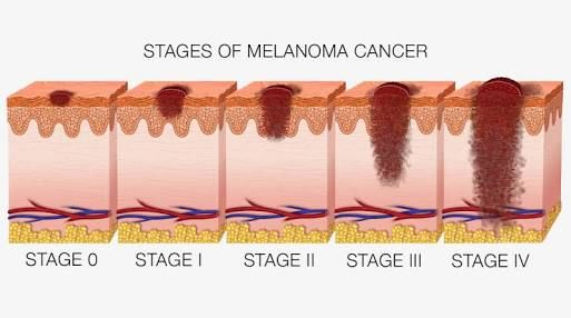 There are 5 stages of melanoma. Stage 0 means the thickness of the melanoma is less than 0.1mm, stage 1 means that the thickness is less than 2mm, stage 2 means that the melanoma is greater than 2mm, stage 3 means it's spread to lymph nodes and stage 4 means that there is a distant spread.