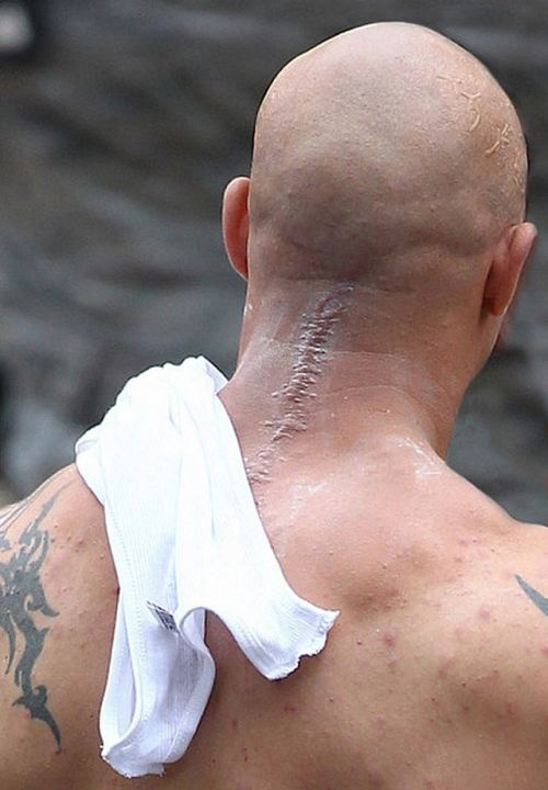 Tom Hardy as BANE (the coolest thing to hit Chronic Pain) showing his faux spinal scar for the hit movie The Dark Knight Rises. It's very Chiari-esque! You rock buddy!