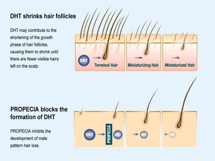 For years researchers have been in search for a baldness cure. We have discovered clues to what causes gradual hair loss, now lets learn about the cures.