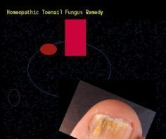 Homeopathic toenail fungus remedy  Nail Fungus Remedy. You have nothing to lose…