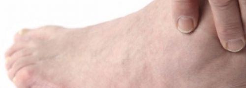 Helpt een purinebeperkt dieet bij jicht? | PlusOnline