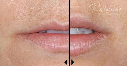 What Do Restylane Dermal Filler Treatments Cost?