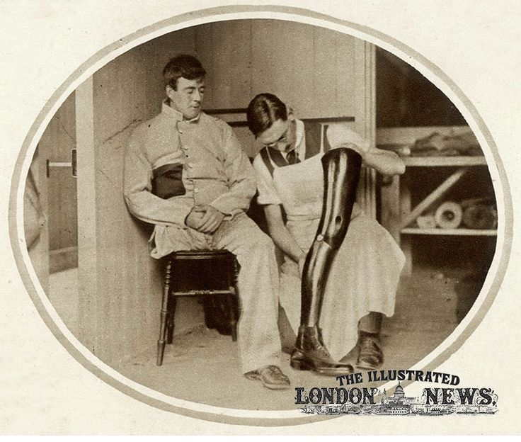 A wounded British soldier having his artificial leg adjusted following his first trial-walk with it at Queen Mary's Convalescent Auxiliary Hospital in Roehampton. The hospital specialised in fitting artificial limbs to wounded British soldiers. It is estimated that there were around 250,000 British amputees and one million soldiers altogether by the end of World War I.