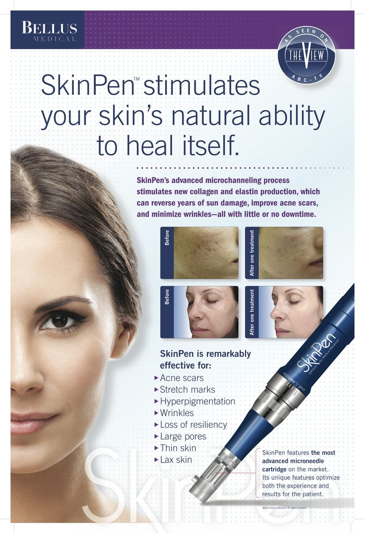 13 best Anti-Aging Tips from SkinPen images on Pinterest | Anti ...