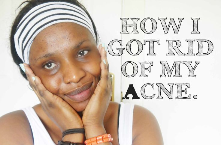 How I Got Rid Of My Acne&Pimples USING Affordable Products