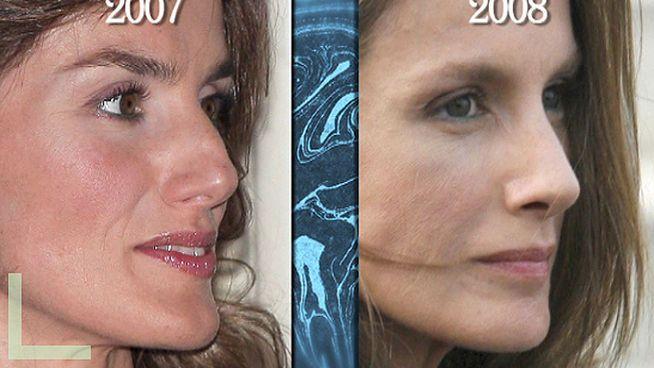 Las fotos del antes y el después de las operaciones estéticas de Letizia Ortiz