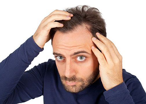 Androgenic Alopecia Hair Loss -- Click image to review more details.