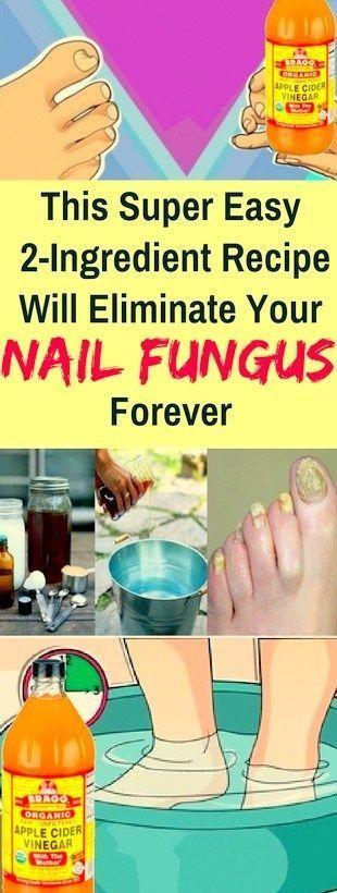 Dieses Super Easy Two Ingredient Rezept beseitigt Ihren Nagelpilz für immer !!!!! #Lifestyle #BeautyHacks