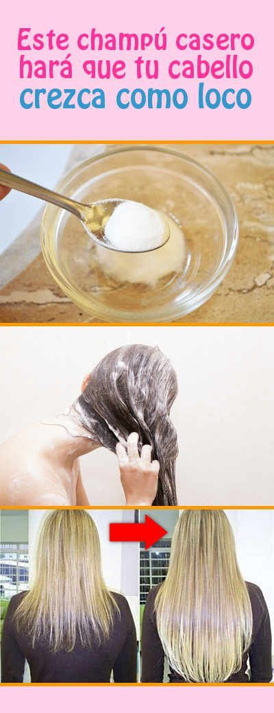 1 parte de bicarbonato 3 de agua y vinagre de manzana para enjuagar. Hará q cresca el cabello