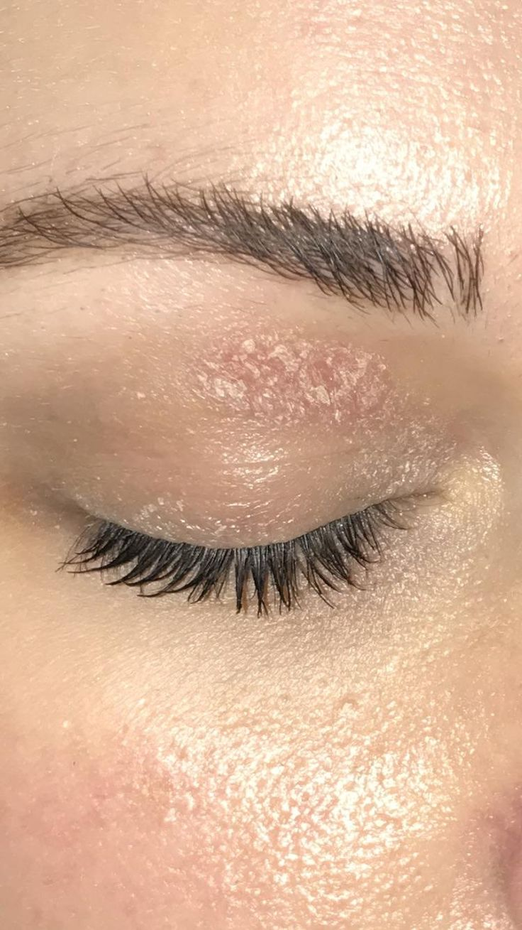 [Skin Concern] What is this patch on my eyelid? How do I