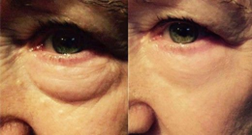 Top 10 Reasons Instantly Ageless is For YOU!
