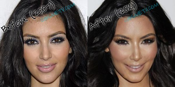 Kim in 2007 and Kim in 2010. Did she or didn't she?  Find out here .... http://www.celebrityplasticsurgery24.com/kim-kardashian-plastic-surgery/