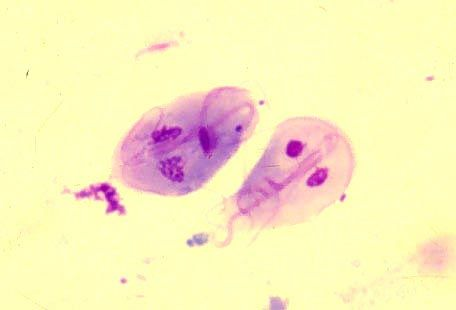 Giardia lamblia is a flagellated protozoan parasite that colonizes and reproduces in the small intestine, causing giardiasis. The parasite attaches to the epithelium by a ventral adhesive disc. Giardiasis does not spread via the bloodstream, nor does it spread to other parts of the gastrointestinal tract, but remains confined to the lumen of the small intestine.Giardia trophozoites absorb their nutrients from the lumen of the small intestine, and are anaerobes.