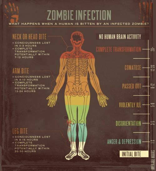Will need this for the zombie apocalypse