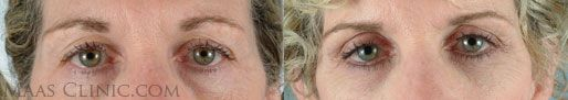 San Francisco Bay Area Laser skin resurfacing