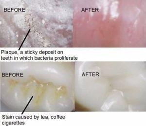 a 3 x ir facil suministro de protesis dental cleanning concetrate para limpiezas 150