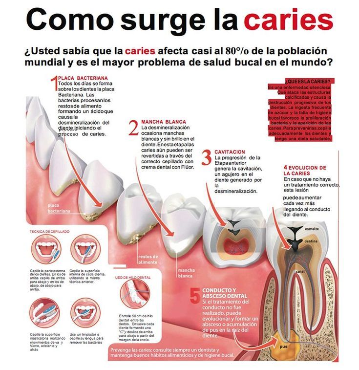 infografia placa dental - Buscar con Google